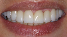 Closeup of older woman's healthy white teeth after