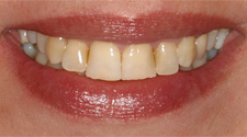 Closeup of older woman's yellow damaged teeth before