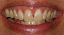 Closeup of woman with gap between front two teeth