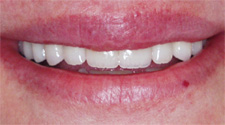 Closeup of woman's repaired front teeth