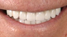 Closeup of older man with perfect smile