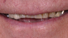 Closeup of older man's uneven smile line
