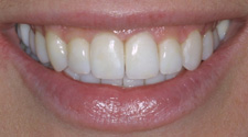 Closeup of woman's white aligned smile