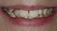 Closeup of young woman's crooked teeth