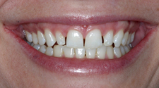 Closeup of smile with gaps between teeth before