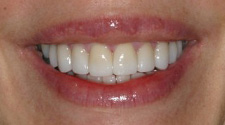 Closeup of woman's white smile after