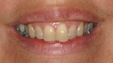 Closeup of woman's yellow teeth before