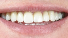 Closeup of man's white, aligned, healthy smile after