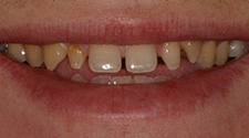 Closeup of man's discolored and unven smile before