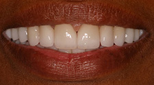 Closeup of woman's aligned white smile after