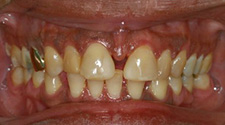 Closeup of woman's gapped, discolored teeth before