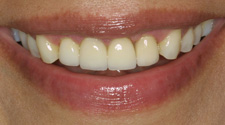 Closeup of woman's white front teeth after