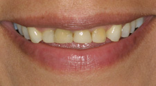 Closeup of woman's yellow front teeth before