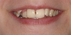 Closeup of teeth before cosmetic dentistry