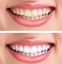 A smile before and after teeth whitening